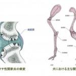 リウマチ性関節炎