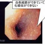 炎症性腸疾患