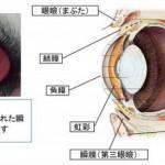 瞬膜腺突出(チェリ一アイ)