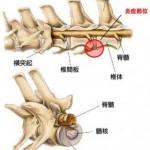 椎間板脊椎炎