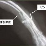 橈尺骨骨折
